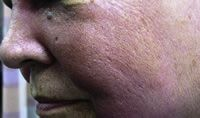 Figure 2: Cutaneous angiosarcoma occurring in the face.