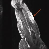 Figure 7: MRI of a woman diagnosed with angiosarcoma...