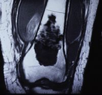 Figure 4: MRI images of distal femoral chondrosarcoma