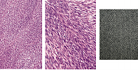 FIGURE 5A - 5C: Histology of Fibrosarcoma...