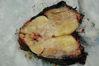 Figure 4a: Cut gross specimen of a myxoid liposarcoma.
