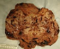 Figure 2: Cut surface of this leiomyosarcoma showing hemorrhage and necrosis.