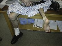 Figure 7: Clinical photo of a patient who has had rotationplasty