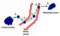 Figure 2: The Metastatic Cascade.