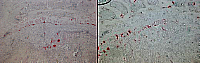 Report Figure 5: TRAP staining of the tibia metaphyses from mice controls (A) or treated by ZOL (B).