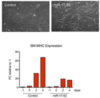 Study Report Figure 1. miR-17-92 overexpression inhibits SMC maturation.