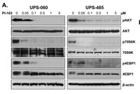 Figure 2A: AKT/mTOR signaling blockade induces marked anti-UPS/MFH effects