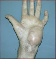 Figure 4: Clinical picture of MFH in the hand.