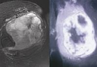 Figure 5a: Axial MRI picture of an MFH in the thigh.