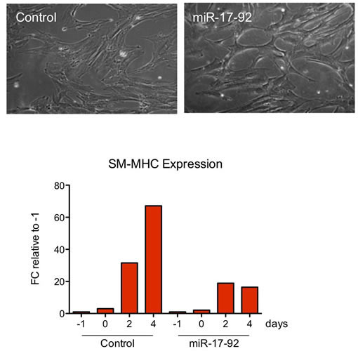 Figure 1. miR-17-92 overexpression inhibits SMC maturation.