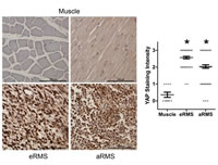 Report Figure 8: Representative images from RMS tissue microarrays...